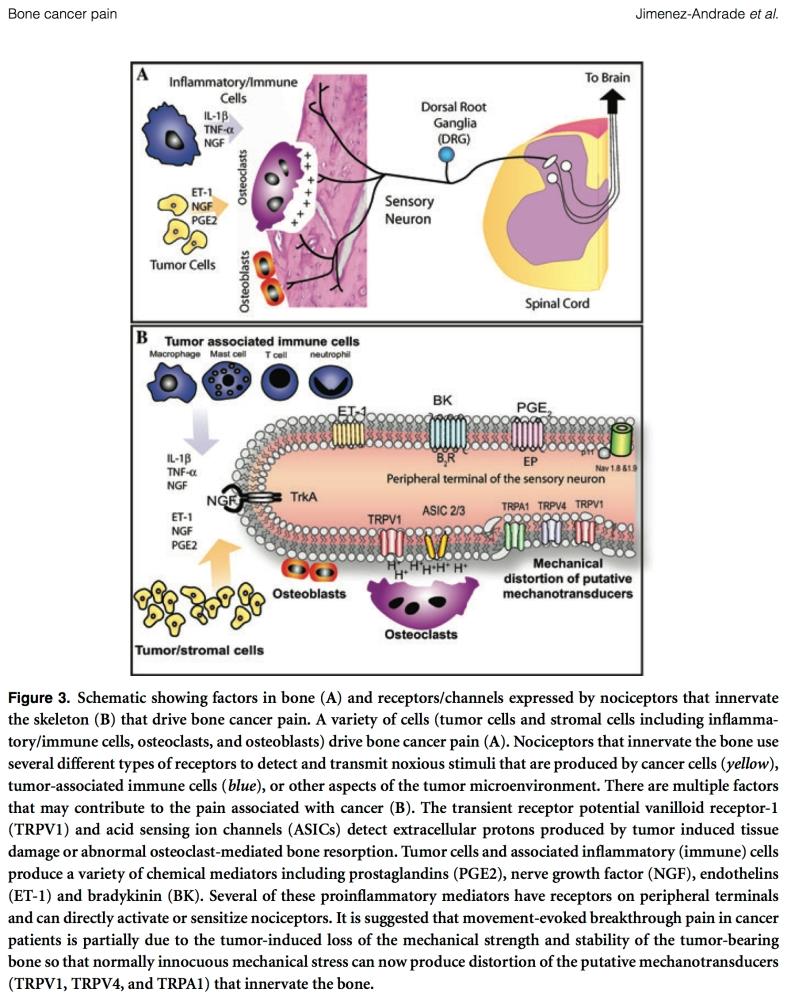 Knoglekræft og smerter - en opdatering (2/2)