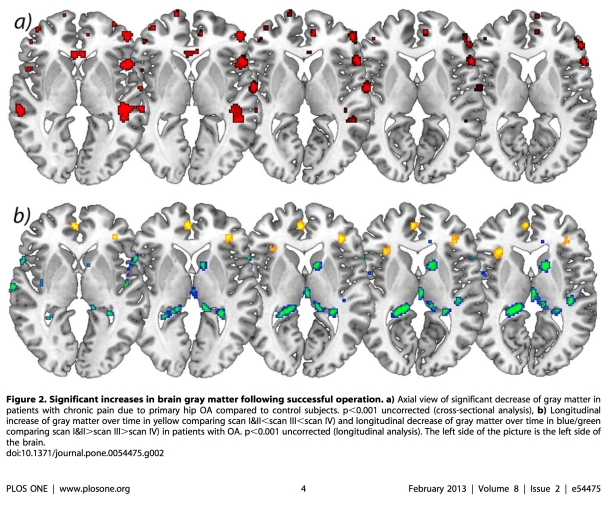 Cortical changes after Hip OA surgery_Rodrigues-Raecke et al. PLOS One