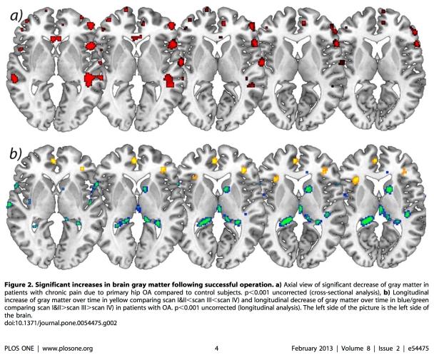 Cortical changes after Hip OA surgery_Rodrigues-Raecke et al. PLOS One
