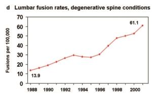 Udviklingen i rygoperationer (Lumbar Fusion) i USA
