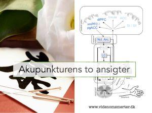 Akupunktur og forventninger.001