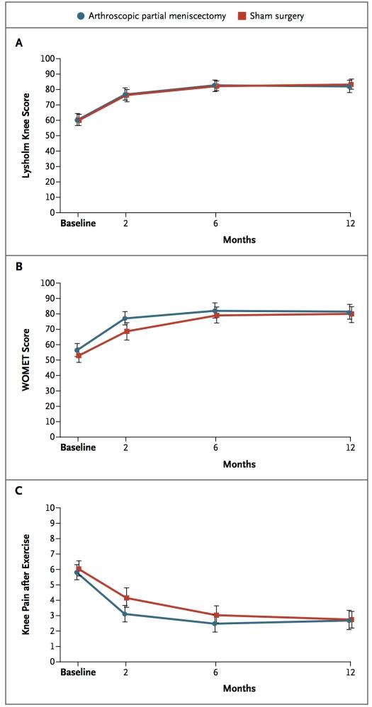 Snyde-operation for knæsmerter er lige så effektiv som 'rigtig' operation (2/3)